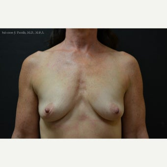 45-54 year old woman treated with Breast Augmentation & Breast Implants before 1816038