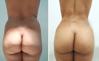 Butt Augmentation before 1087931