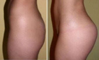 Butt Augmentation after 1087931