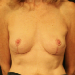 55-64 year old woman treated with Breast Lift after 3742359