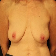 55-64 year old woman treated with Breast Lift before 3742359