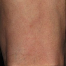Patient treated with sclerotherapy for small varicose veins / reticular veins of the back of the leg after 914989