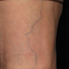 Patient treated with sclerotherapy for small varicose veins / reticular veins of the back of the leg before 914989