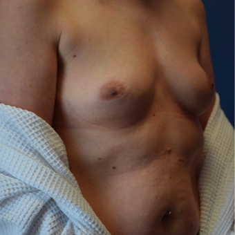 35-44 year old woman treated with Breast Implants before 3540707