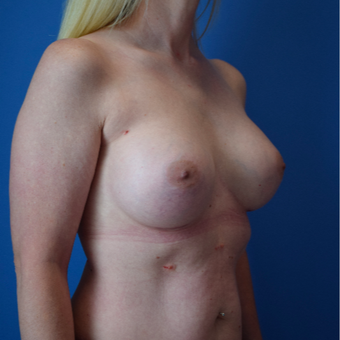 35-44 year old woman treated with Breast Implants after 3540707