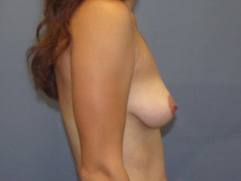 Breast Augmentation 954750