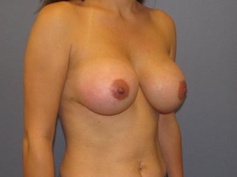 Breast Augmentation after 954750
