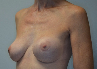60 year old woman treated with Breast Implant Revision 2541822