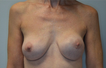 60 year old woman treated with Breast Implant Revision before 2541822