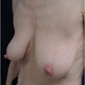 45-54 year old woman treated with Breast Lift before 3293565