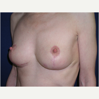 45-54 year old woman treated with Breast Lift after 3293565
