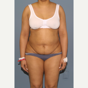 45-54 year old woman treated with Tummy Tuck before 3565850