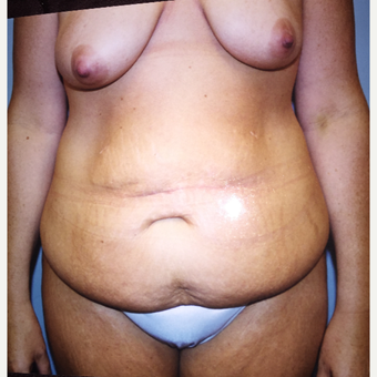 45-54 year old woman treated with Mommy Makeover before 3333545