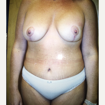45-54 year old woman treated with Mommy Makeover after 3333545