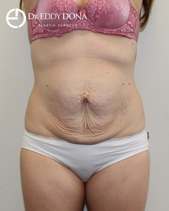 25-34 year old woman treated with Tummy Tuck before 2859307