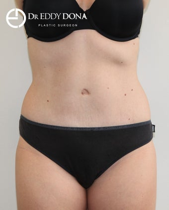 25-34 year old woman treated with Tummy Tuck after 2859307