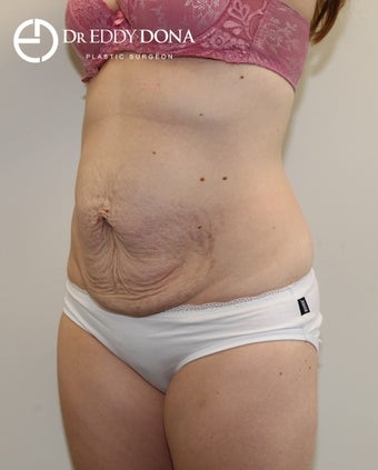 25-34 year old woman treated with Tummy Tuck 2859307