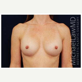 25-34 year old woman treated with Inspira Breast Implants after 1860188