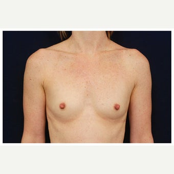 25-34 year old woman treated with Inspira Breast Implants before 1860188