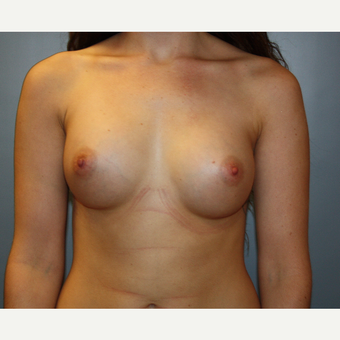 18-24 year old woman treated with Breast Augmentation after 3708738