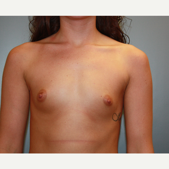 18-24 year old woman treated with Breast Augmentation before 3708738