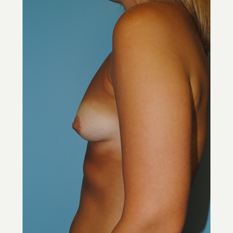 25-34 year old woman treated with Breast Implants before 3071139