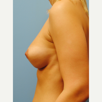 25-34 year old woman treated with Breast Implants after 3071139