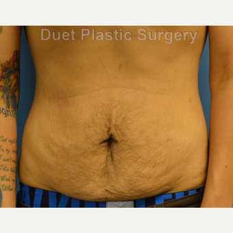 25-34 year old man treated with Male Tummy Tuck before 3368658