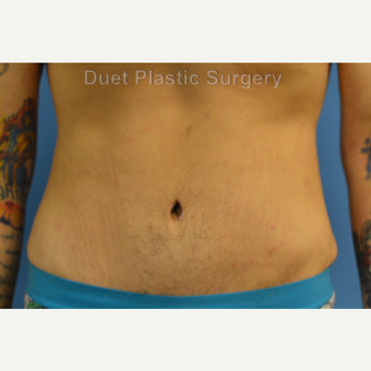 25-34 year old man treated with Male Tummy Tuck after 3368658