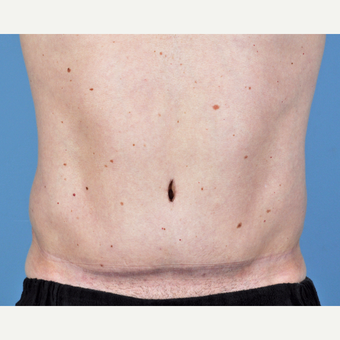 35-44 year old man treated with Tummy Tuck after 3837545
