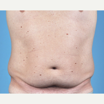 35-44 year old man treated with Tummy Tuck before 3837545
