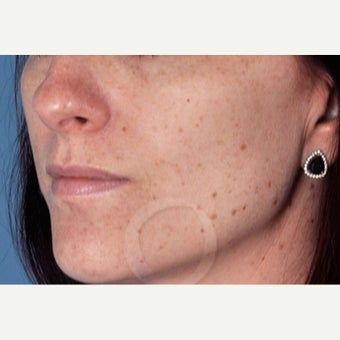 25-34 year old woman treated with Skin Rejuvenation before 2363943