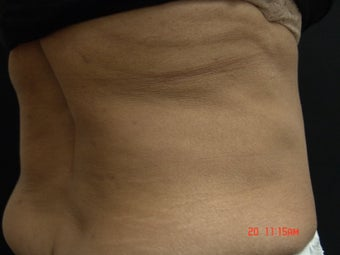Coolsculpting after 501140