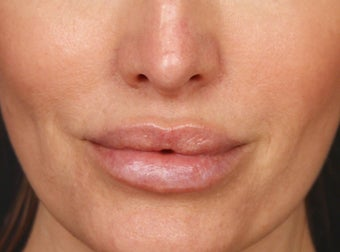 35-44 year old woman treated with Lip Augmentation after 2977413