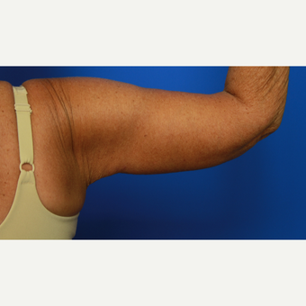 70- year old woman treated with Arm Lift after 3108479