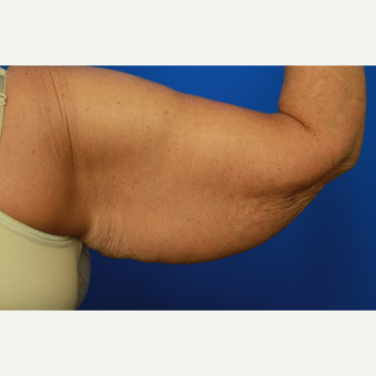 70- year old woman treated with Arm Lift before 3108479