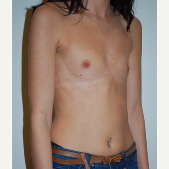 25-34 year old woman treated with Breast Augmentation before 3254134