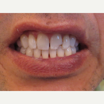 45-54 year old man treated with Porcelain Veneers before 3339376