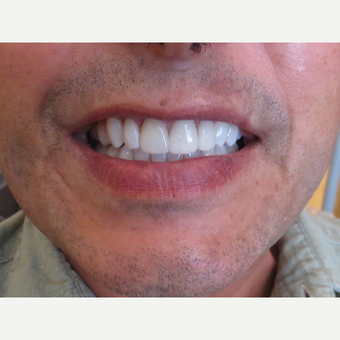 45-54 year old man treated with Porcelain Veneers after 3339376