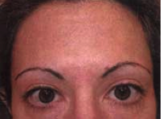 Botox Injections after 1223303