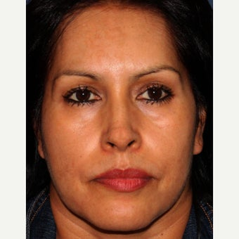35-44 year old woman treated with Melasma Treatment after 2078631