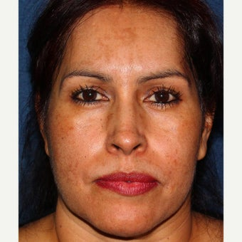 35-44 year old woman treated with Melasma Treatment before 2078631