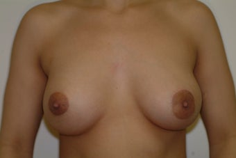 31 year old woman desires correction of small droopy breasts after 1481468