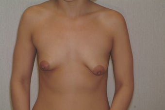31 year old woman desires correction of small droopy breasts before 1481468