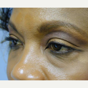 Eyelid Surgery before 3241567
