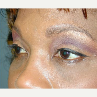 Eyelid Surgery after 3241567