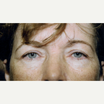 45-54 year old woman treated with Eyelid Surgery after 3236399