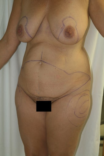 Lax abdomen and breast ptosis 1100142