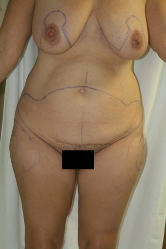 Lax abdomen and breast ptosis before 1100142