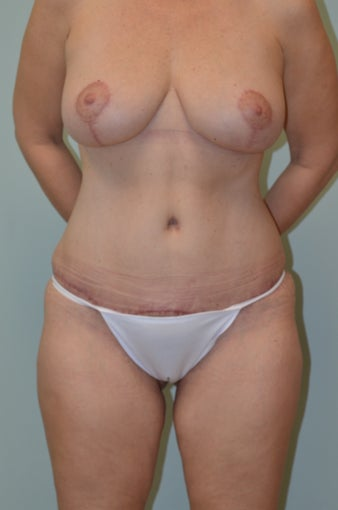 Lax abdomen and breast ptosis after 1100142